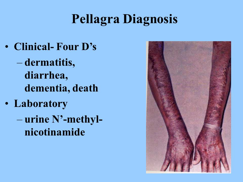 Pellagra Diagnosis Clinical- Four D's –dermatitis, diarrhea, dementia, death Laboratory –urine N'-methyl- nicotinamide