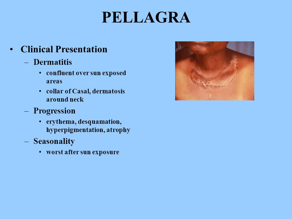 PELLAGRA Clinical Presentation –Dermatitis confluent over sun exposed areas collar of Casal, dermatosis around neck –Progression erythema, desquamation, hyperpigmentation, atrophy –Seasonality worst after sun exposure