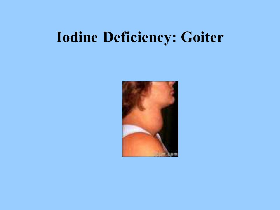 Iodine Deficiency: Goiter