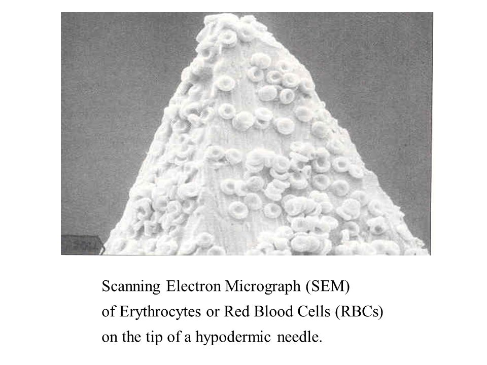 Scanning Electron Micrograph (SEM) of Erythrocytes or Red Blood Cells (RBCs) on the tip of a hypodermic needle.
