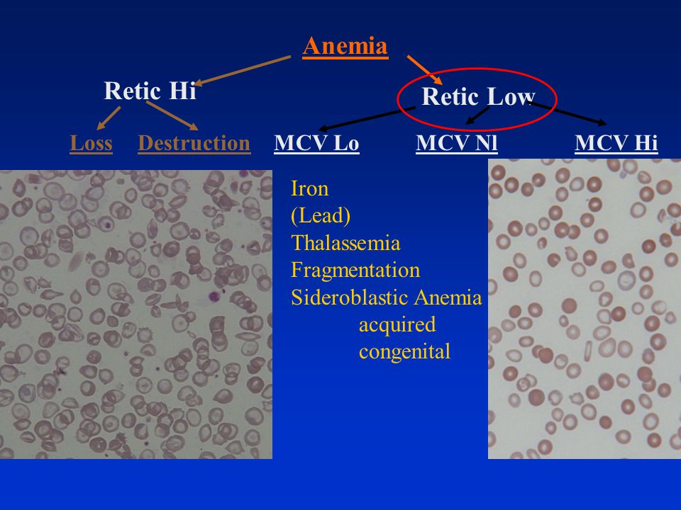 Retic Hi Retic Low Anemia DestructionLossMCV HiMCV NlMCV Lo Iron (Lead) Thalassemia Fragmentation Sideroblastic Anemia acquired congenital