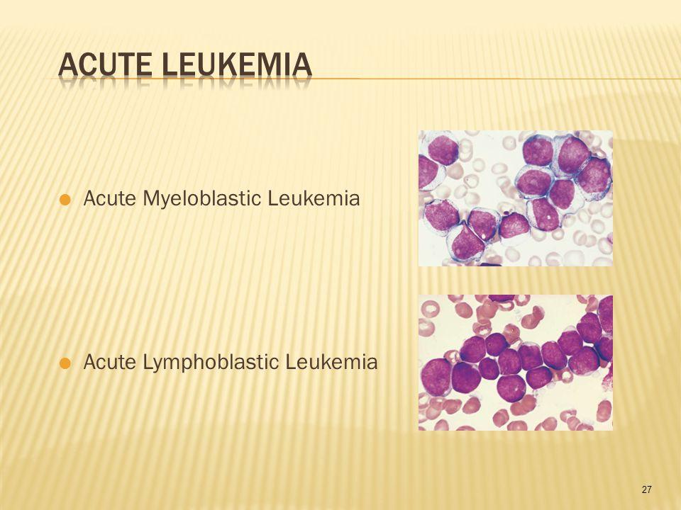 27  Acute Myeloblastic Leukemia  Acute Lymphoblastic Leukemia