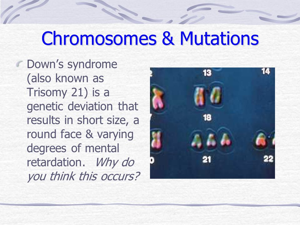 Chromosomes & Mutations Down's syndrome (also known as Trisomy 21) is a genetic deviation that results in short size, a round face & varying degrees o