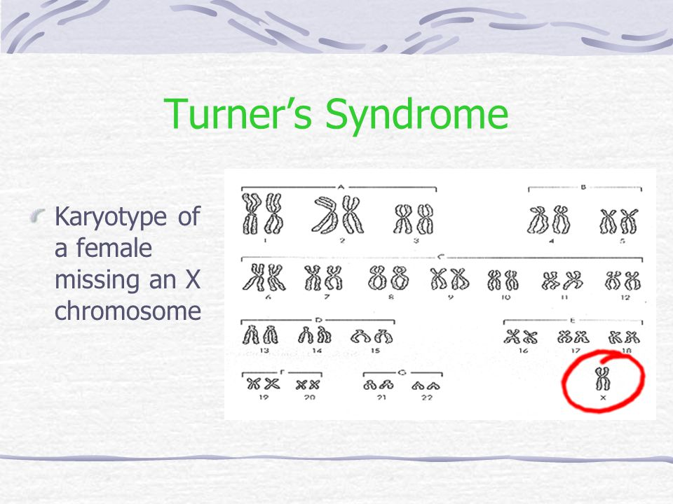 Turner's Syndrome Karyotype of a female missing an X chromosome