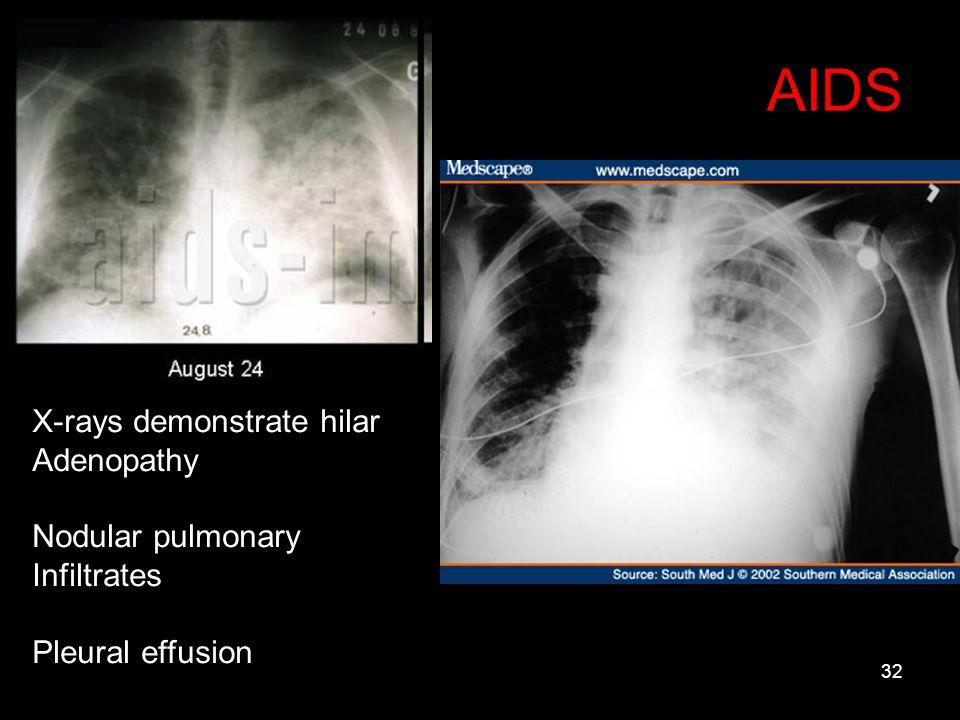 32 AIDS X-rays demonstrate hilar Adenopathy Nodular pulmonary Infiltrates Pleural effusion