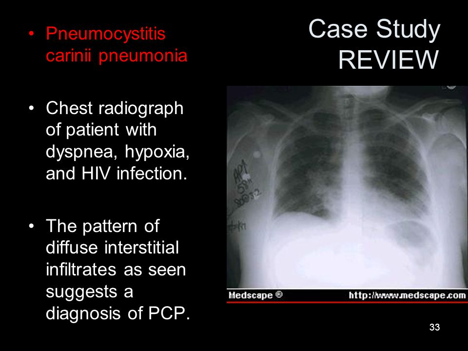 33 Case Study REVIEW Pneumocystitis carinii pneumonia Chest radiograph of patient with dyspnea, hypoxia, and HIV infection.