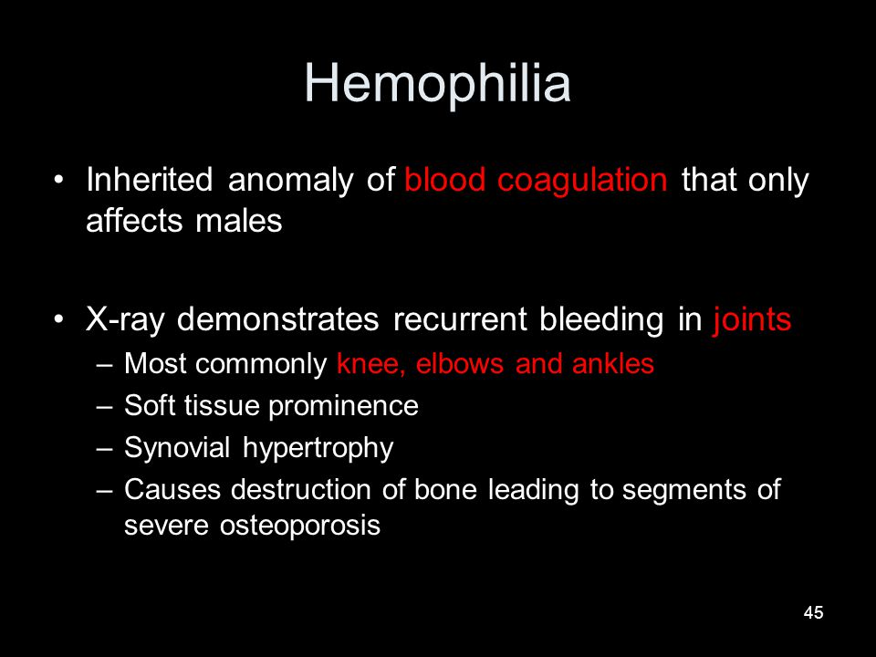 45 Hemophilia Inherited anomaly of blood coagulation that only affects males X-ray demonstrates recurrent bleeding in joints –Most commonly knee, elbows and ankles –Soft tissue prominence –Synovial hypertrophy –Causes destruction of bone leading to segments of severe osteoporosis