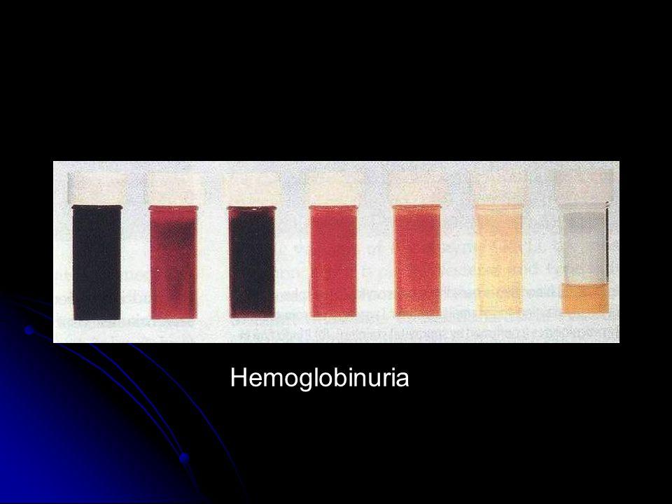 Hemoglobinuria