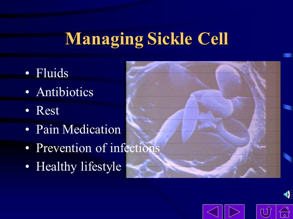 Managing Sickle Cell Fluids Antibiotics Rest Pain Medication Prevention of infections Healthy lifestyle