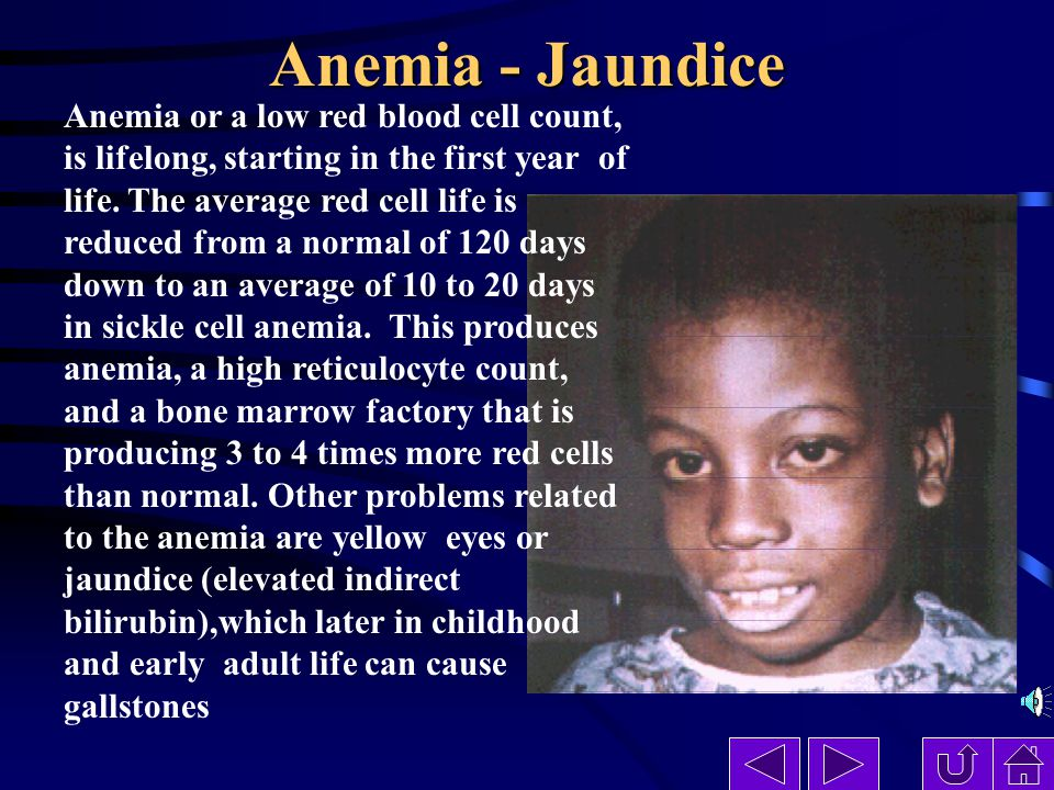 Anemia - Jaundice Anemia or a low red blood cell count, is lifelong, starting in the first year of life.