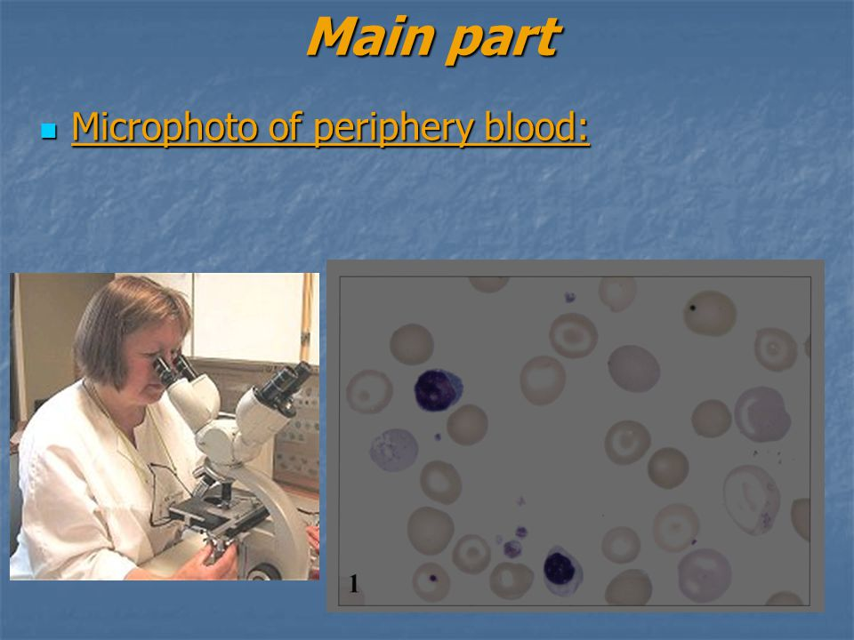 Main part Microphoto of periphery blood: Microphoto of periphery blood: