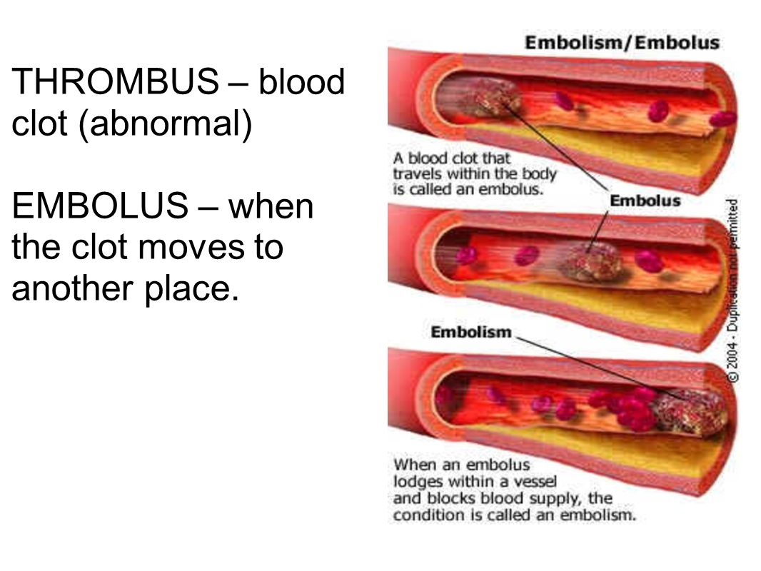 THROMBUS – blood clot (abnormal) EMBOLUS – when the clot moves to another place.