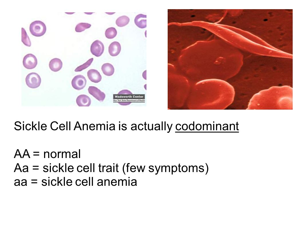 Sickle Cell Anemia is actually codominant AA = normal Aa = sickle cell trait (few symptoms) aa = sickle cell anemia