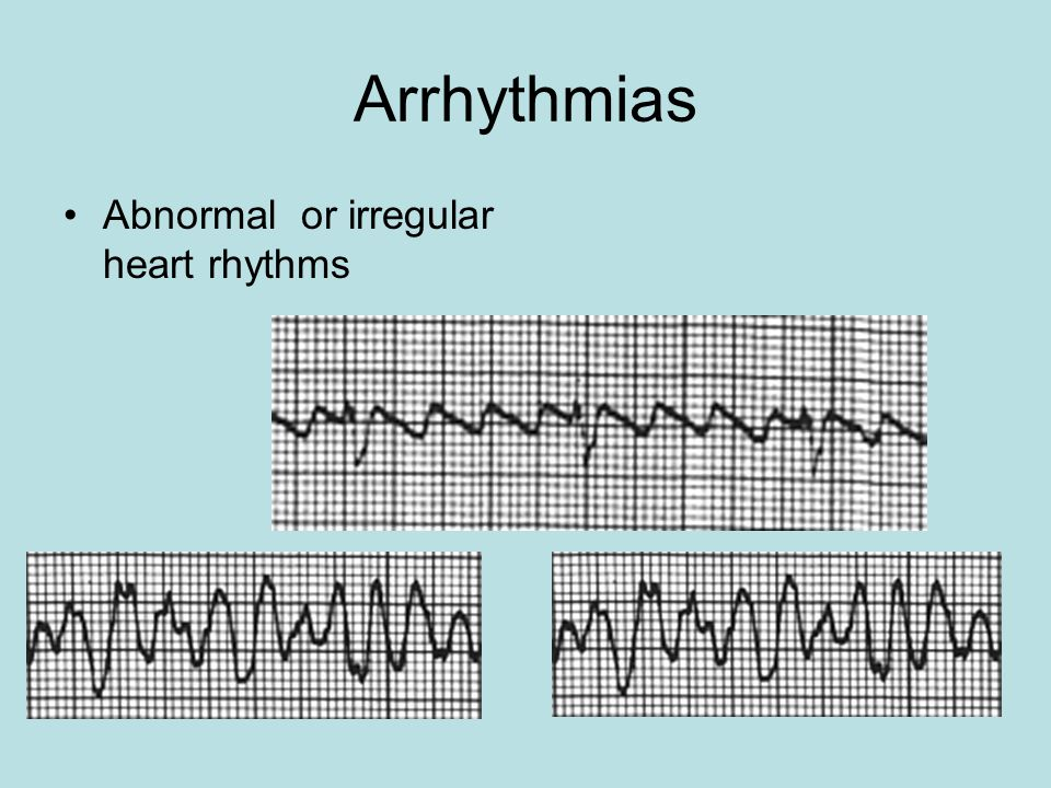 Arrhythmias Abnormal or irregular heart rhythms