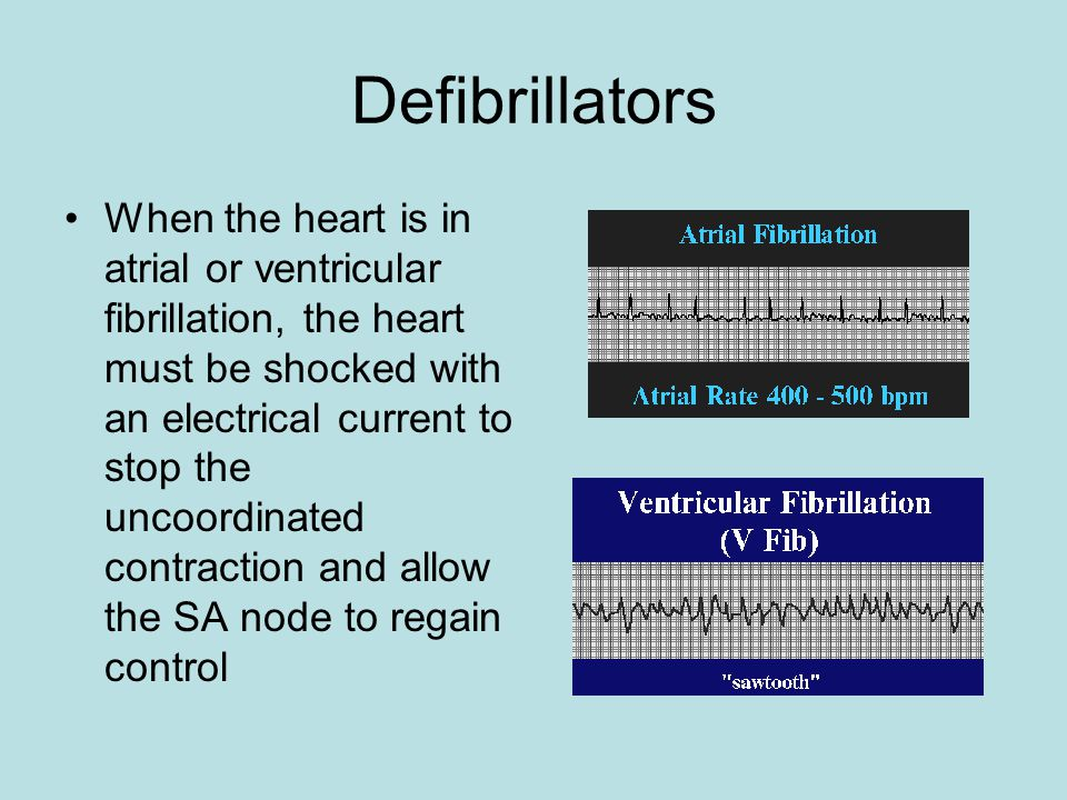 Defibrillators When the heart is in atrial or ventricular fibrillation, the heart must be shocked with an electrical current to stop the uncoordinated contraction and allow the SA node to regain control