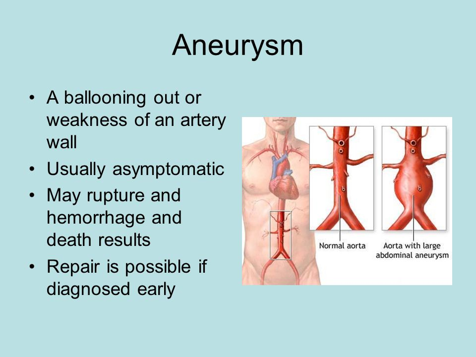 Aneurysm A ballooning out or weakness of an artery wall Usually asymptomatic May rupture and hemorrhage and death results Repair is possible if diagno