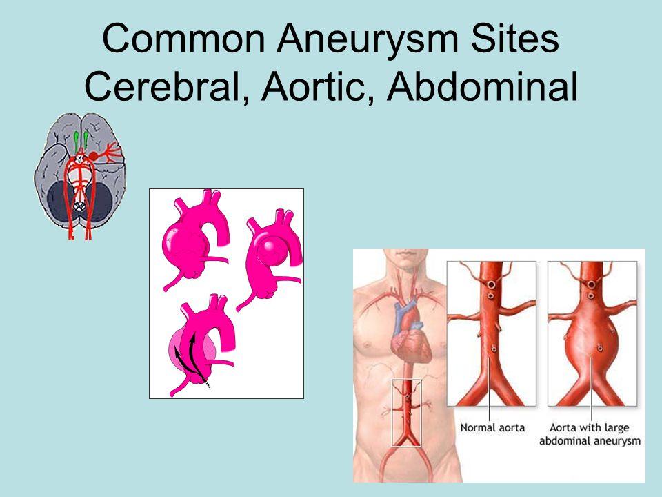 Common Aneurysm Sites Cerebral, Aortic, Abdominal