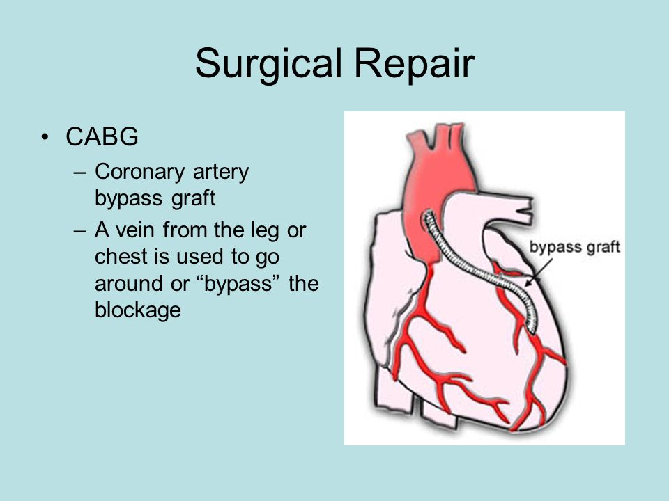 Surgical Repair CABG –Coronary artery bypass graft –A vein from the leg or chest is used to go around or bypass the blockage