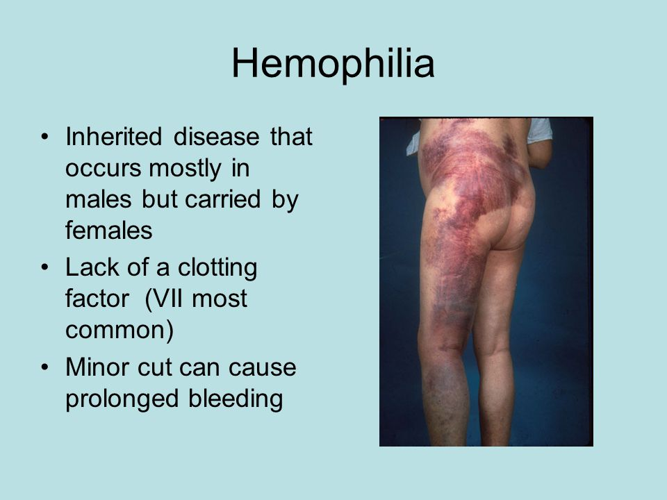 Hemophilia Inherited disease that occurs mostly in males but carried by females Lack of a clotting factor (VII most common) Minor cut can cause prolonged bleeding