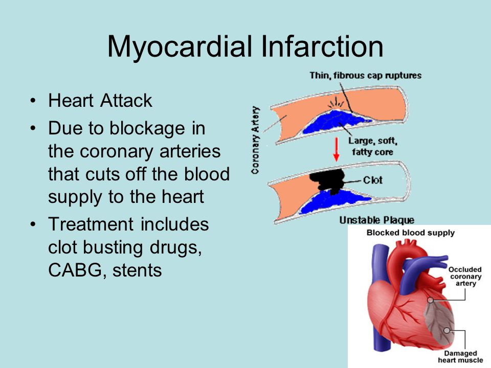 Myocardial Infarction Heart Attack Due to blockage in the coronary arteries that cuts off the blood supply to the heart Treatment includes clot busting drugs, CABG, stents