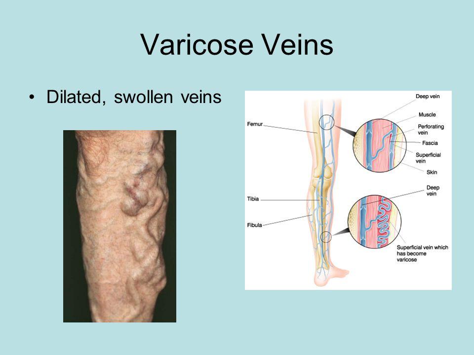 Varicose Veins Dilated, swollen veins