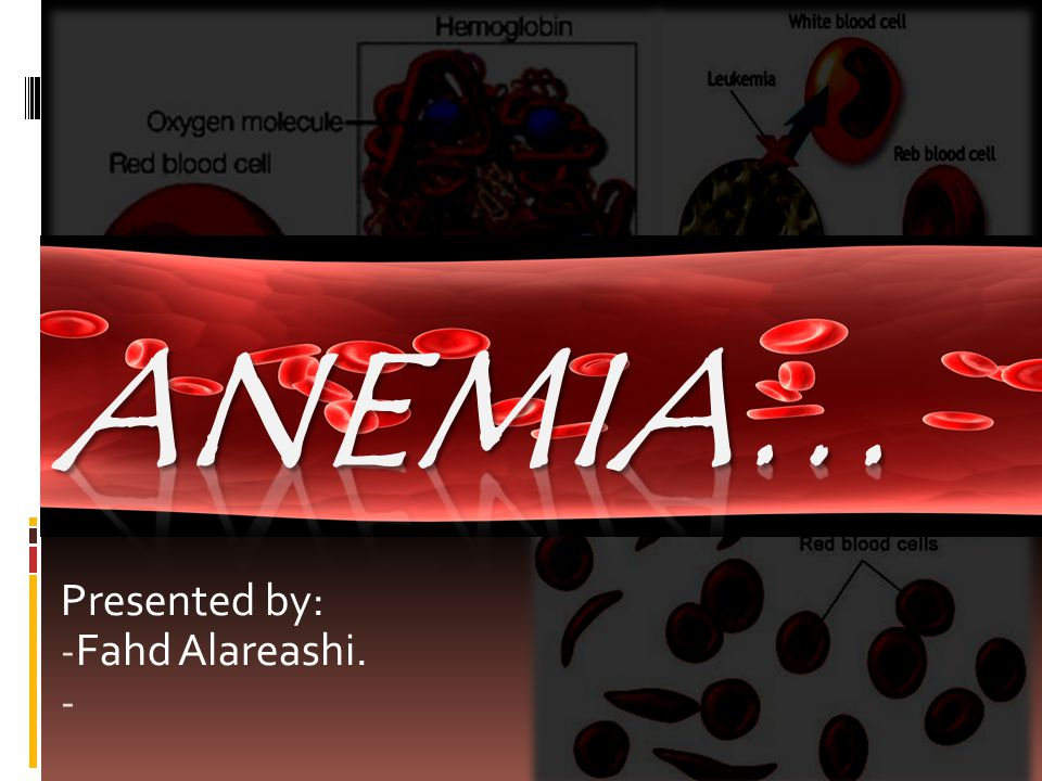 What is Anemia. A condition characterized by a decrease in RBCs mass, hemoglobin or RBCs count.