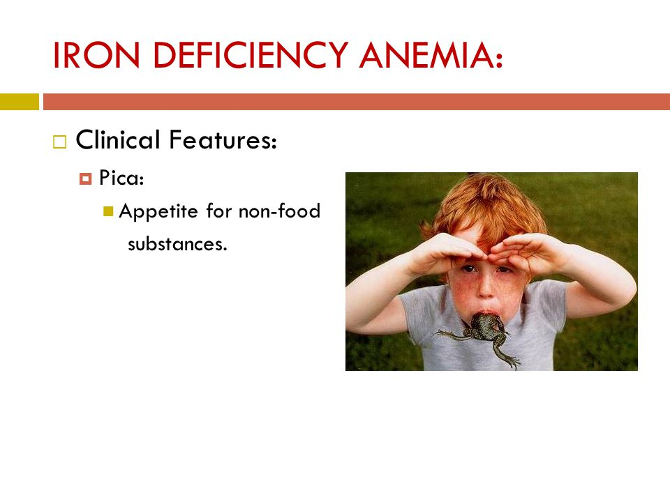 IRON DEFICIENCY ANEMIA:  Clinical Features:  Pica: Appetite for non-food substances.