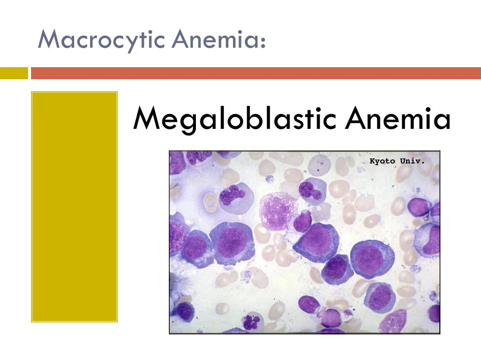 Macrocytic Anemia: Megaloblastic Anemia