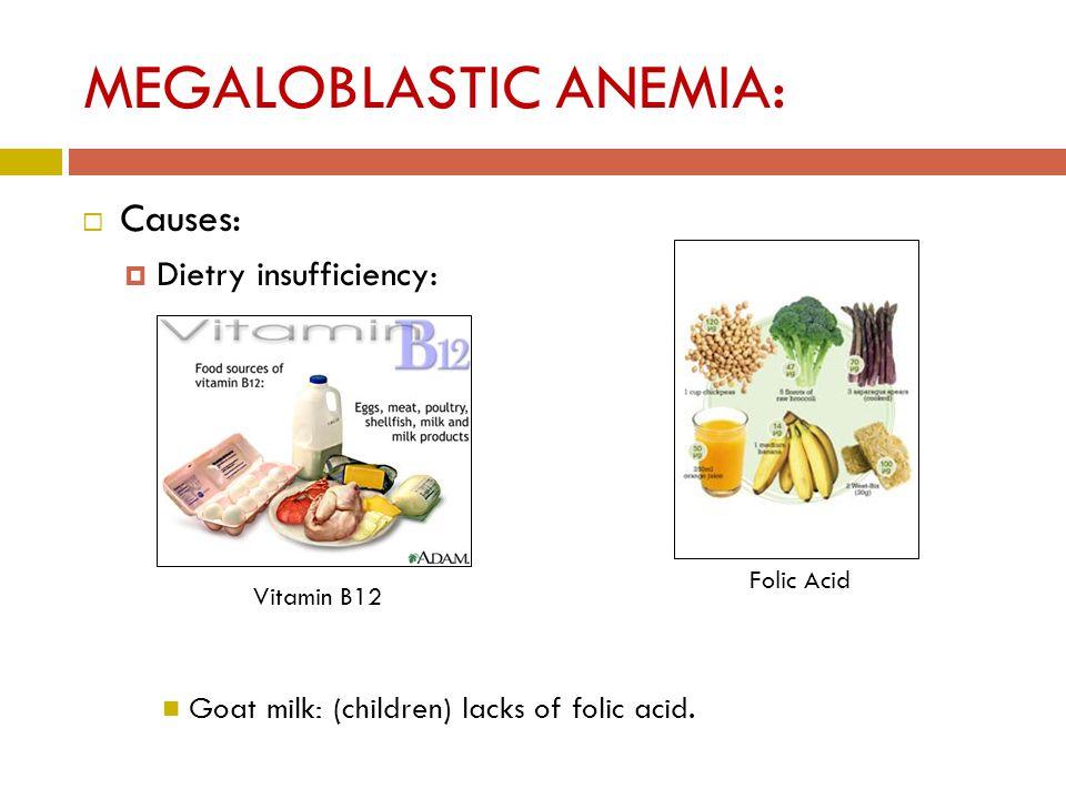 MEGALOBLASTIC ANEMIA:  Causes:  Dietry insufficiency: Goat milk: (children) lacks of folic acid.