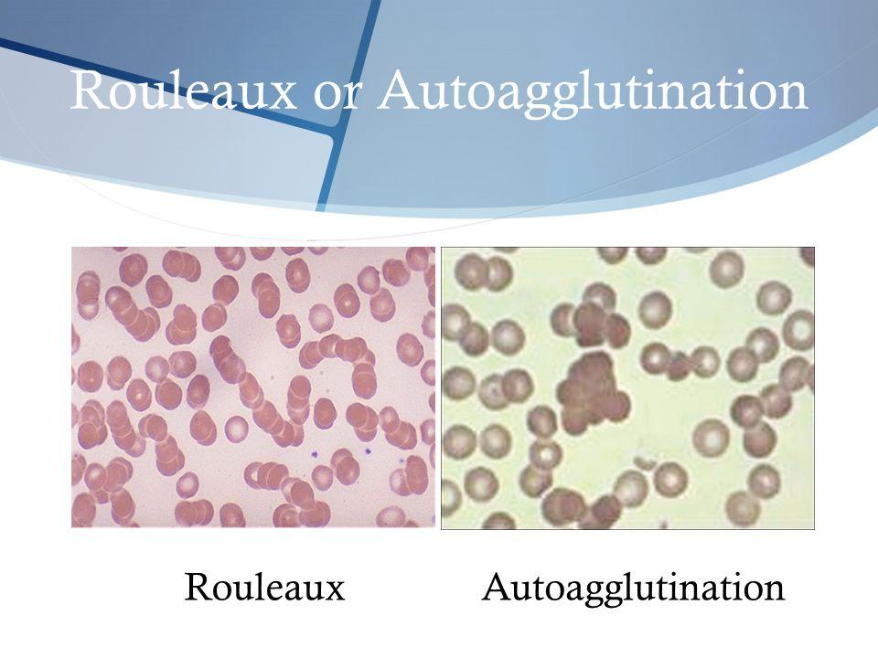 Rouleaux or Autoagglutination RouleauxAutoagglutination