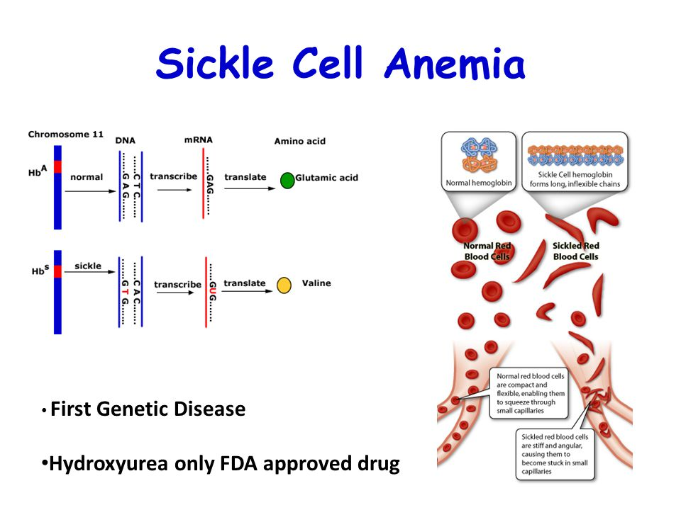Sickle Cell Anemia First Genetic Disease Hydroxyurea only FDA approved drug