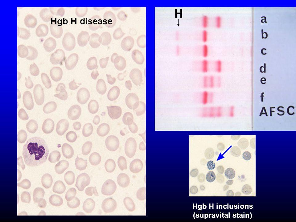 H Hgb H disease Hgb H inclusions (supravital stain)