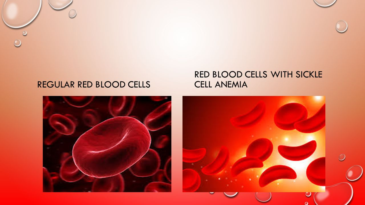 REGULAR RED BLOOD CELLS RED BLOOD CELLS WITH SICKLE CELL ANEMIA