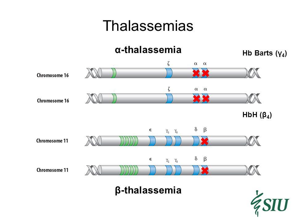 Thalassemias α-thalassemia β-thalassemia HbH (β 4 ) Hb Barts (γ 4 )