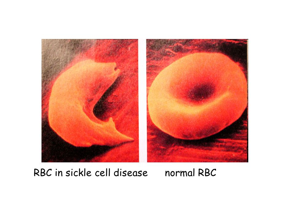 RBC in sickle cell disease normal RBC