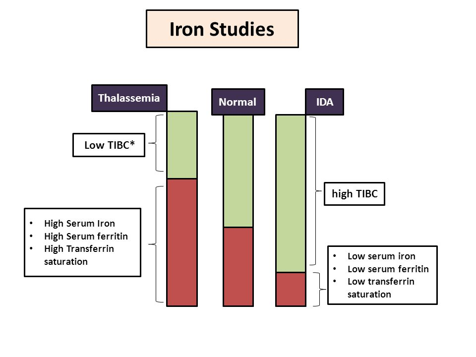 Iron Studies Low TIBC* High Serum Iron High Serum ferritin High Transferrin saturation Low serum iron Low serum ferritin Low transferrin saturation high TIBC Thalassemia IDANormal