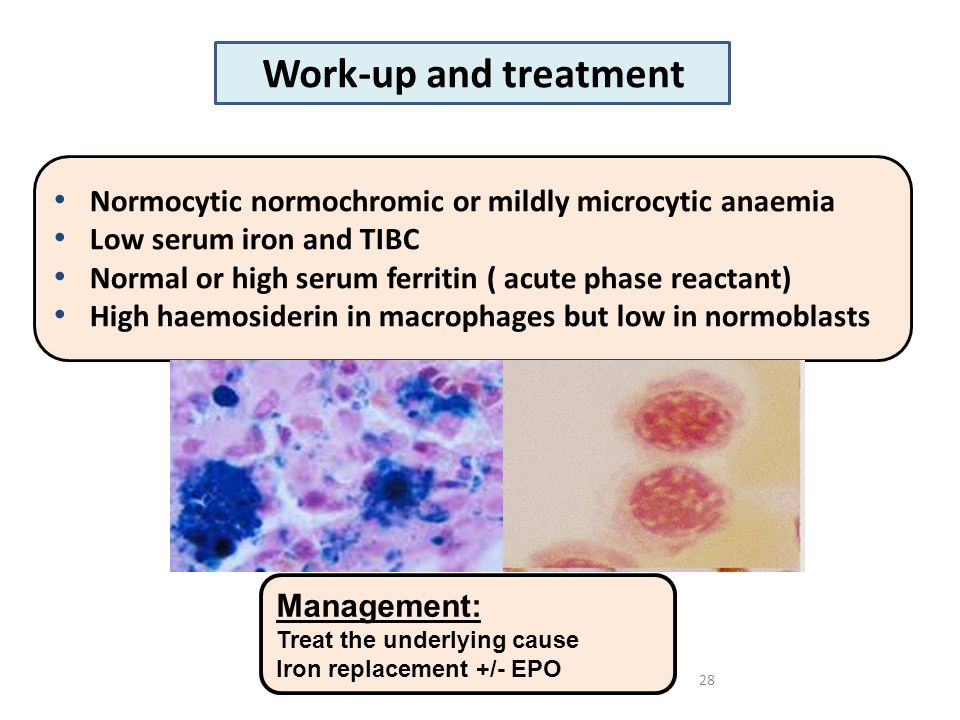 28 Management: Treat the underlying cause Iron replacement +/- EPO Normocytic normochromic or mildly microcytic anaemia Low serum iron and TIBC Normal or high serum ferritin ( acute phase reactant) High haemosiderin in macrophages but low in normoblasts Work-up and treatment