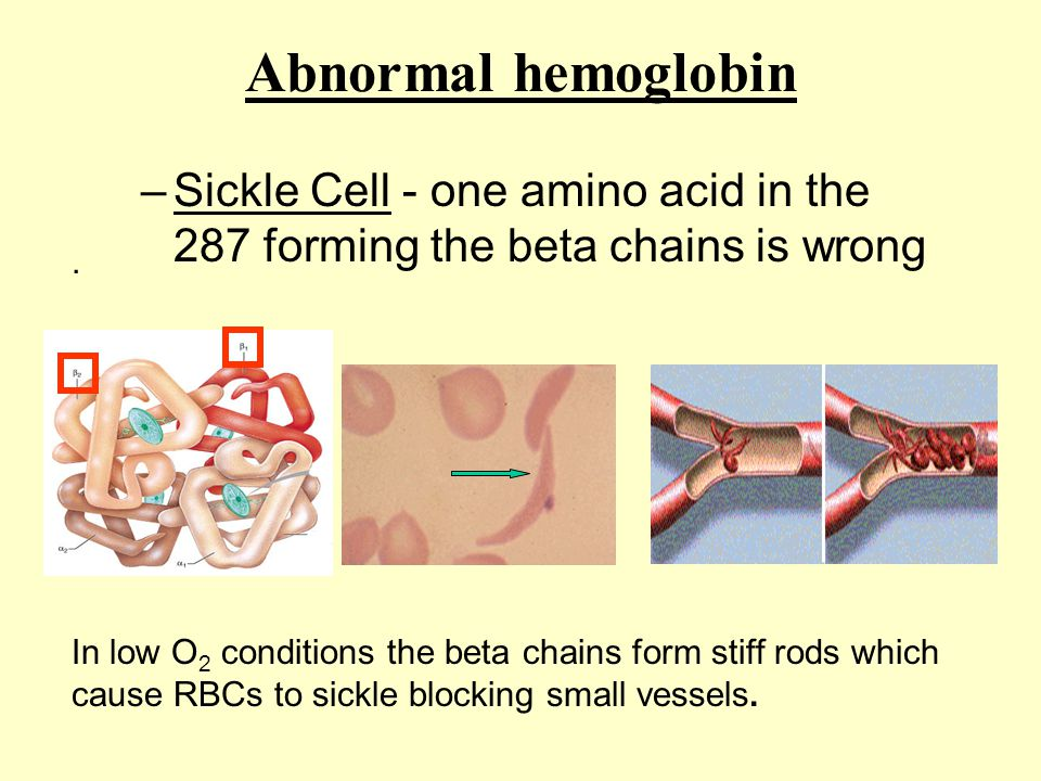 Abnormal hemoglobin –Sickle Cell - one amino acid in the 287 forming the beta chains is wrong. In low O 2 conditions the beta chains form stiff rods w