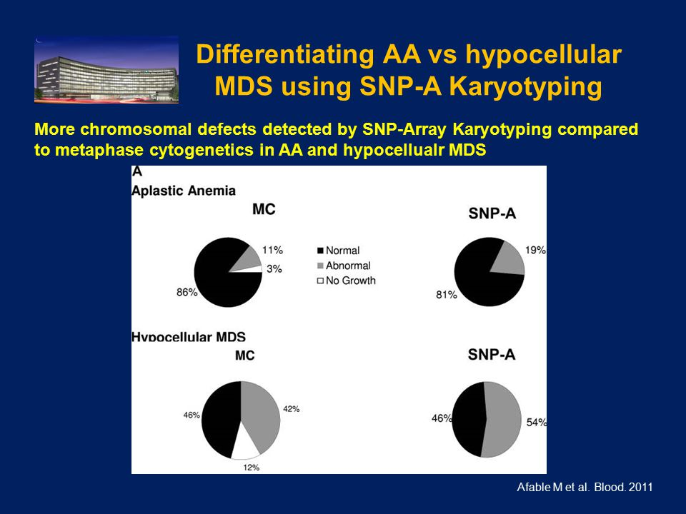 Differentiating AA vs hypocellular MDS using SNP-A Karyotyping Afable M et al.