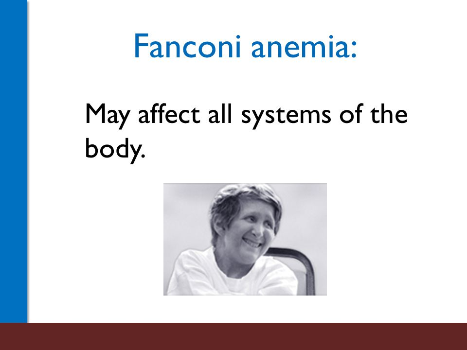 Fanconi anemia: Is a cancer-prone disease.