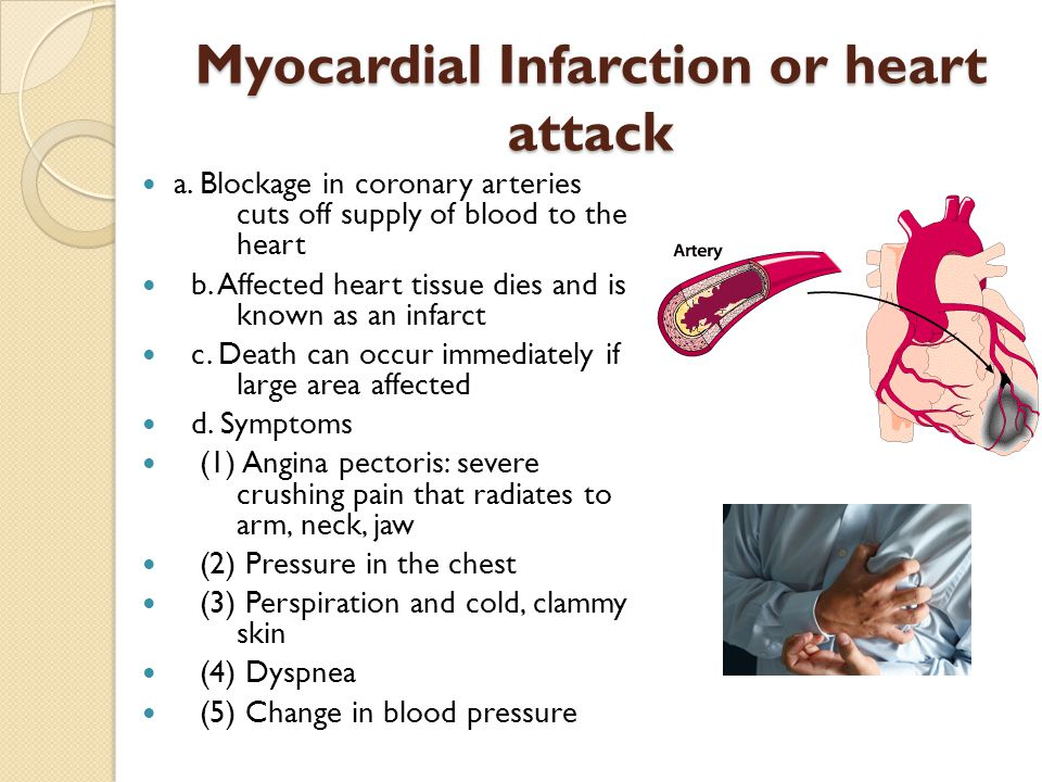 Myocardial Infarction or heart attack a. Blockage in coronary arteries cuts off supply of blood to the heart b. Affected heart tissue dies and is know
