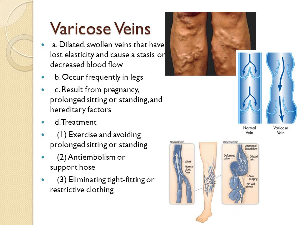 Varicose Veins a. Dilated, swollen veins that have lost elasticity and cause a stasis or decreased blood flow b. Occur frequently in legs c. Result fr