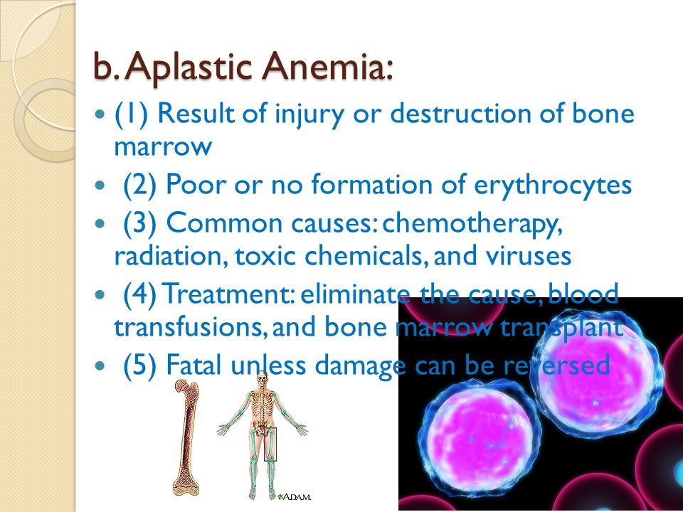 b. Aplastic Anemia: (1) Result of injury or destruction of bone marrow (2) Poor or no formation of erythrocytes (3) Common causes: chemotherapy, radia