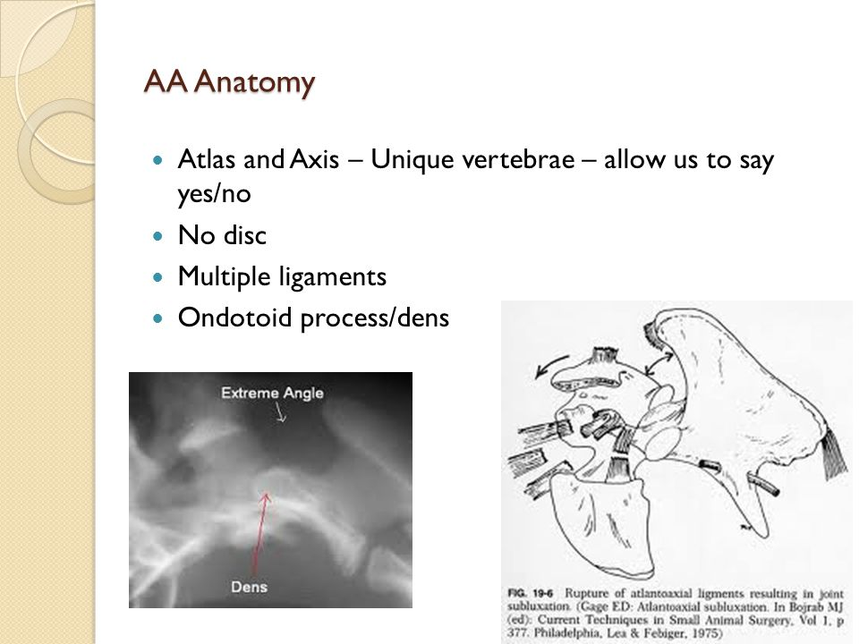 AA Anatomy Atlas and Axis – Unique vertebrae – allow us to say yes/no No disc Multiple ligaments Ondotoid process/dens