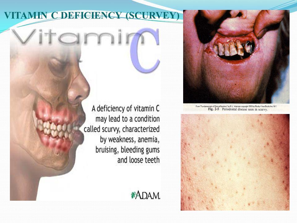 VITAMIN C DEFICIENCY (SCURVEY)