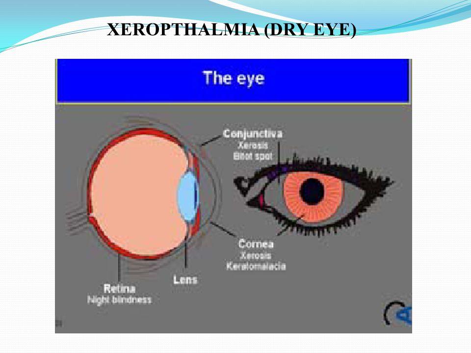 XEROPTHALMIA (DRY EYE)