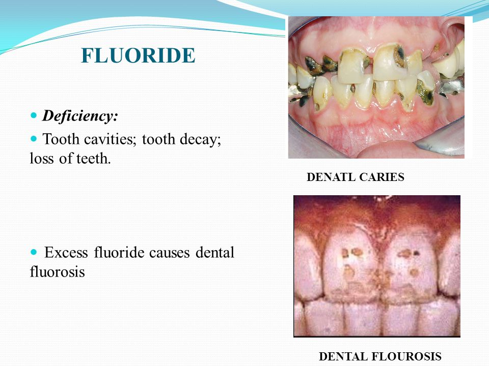 FLUORIDE Deficiency: Tooth cavities; tooth decay; loss of teeth.