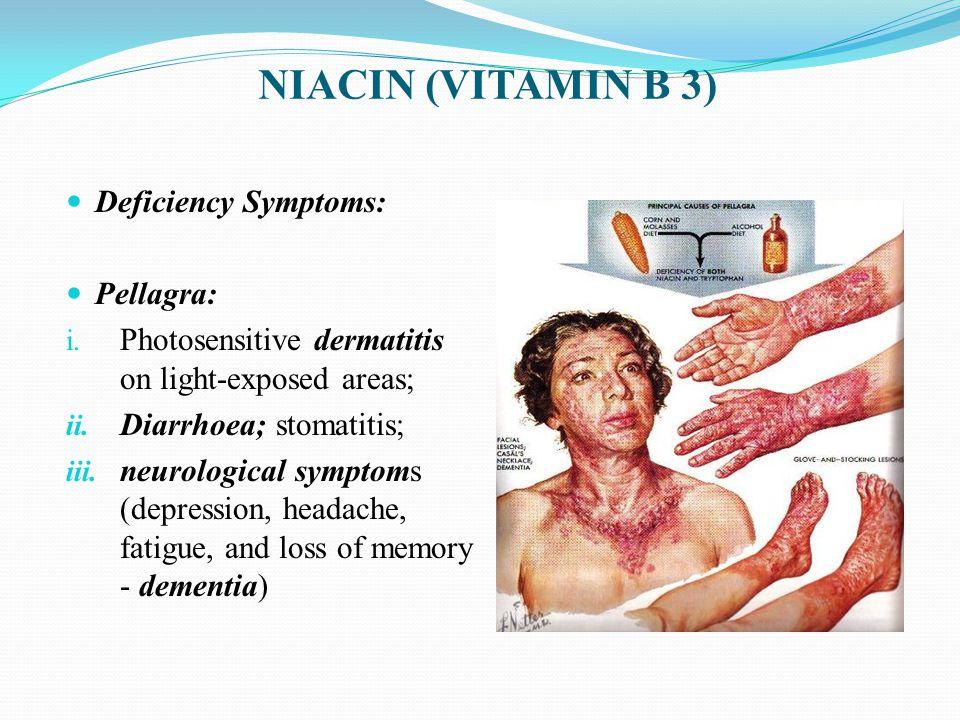 Deficiency Symptoms: Pellagra: i.Photosensitive dermatitis on light-exposed areas; ii.