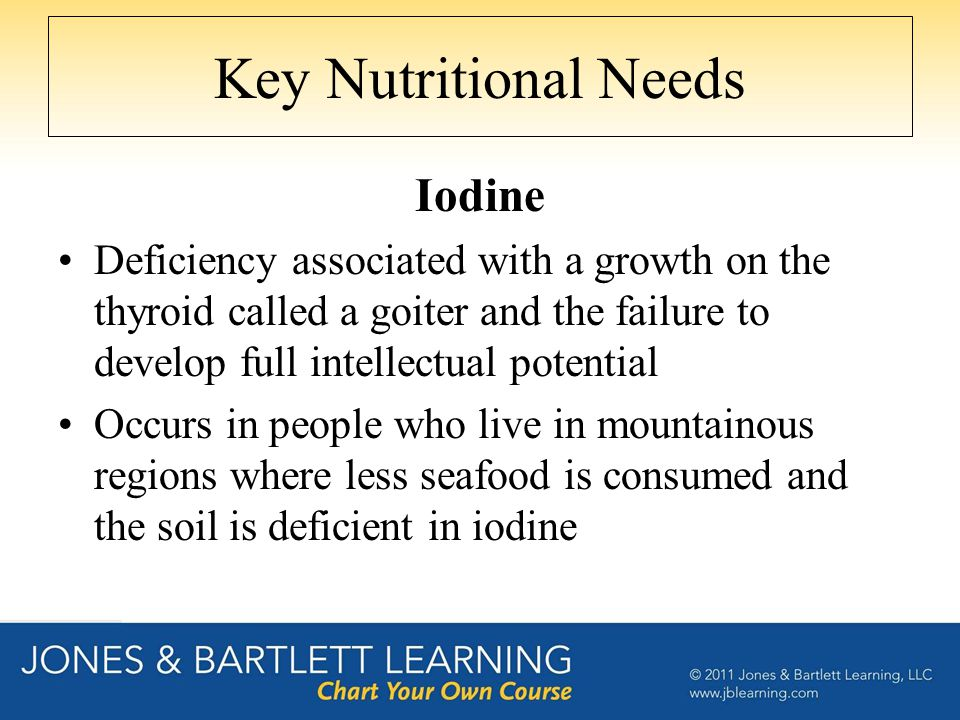 Key Nutritional Needs Iodine Deficiency associated with a growth on the thyroid called a goiter and the failure to develop full intellectual potential