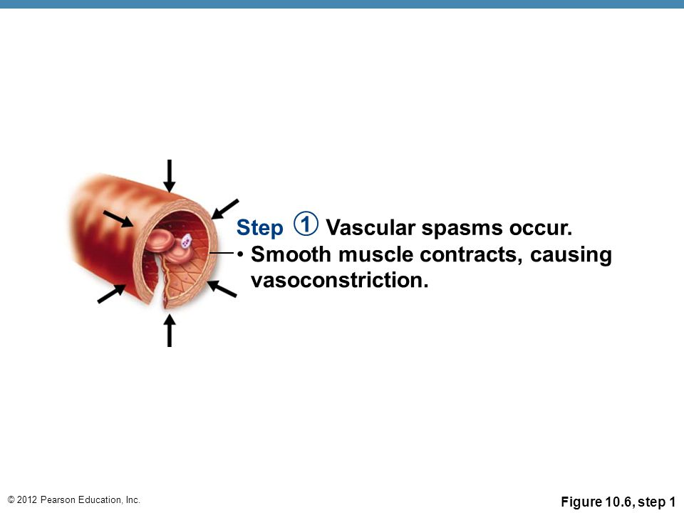© 2012 Pearson Education, Inc. Figure 10.6, step 1 Step Vascular spasms occur. 1 Smooth muscle contracts, causing vasoconstriction.
